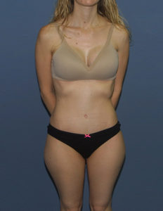 Tummy tuck correction in DC