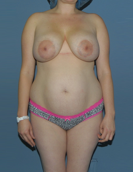 Before implant removal