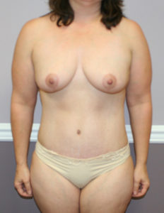 Mastopexy surgery in Annapolis