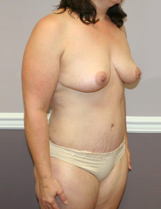 Mastopexy surgeon in Washington