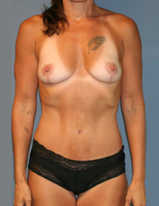 Mastopexy operation in MD
