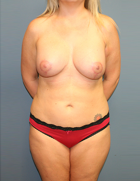 Breast lift with augmentation in DC