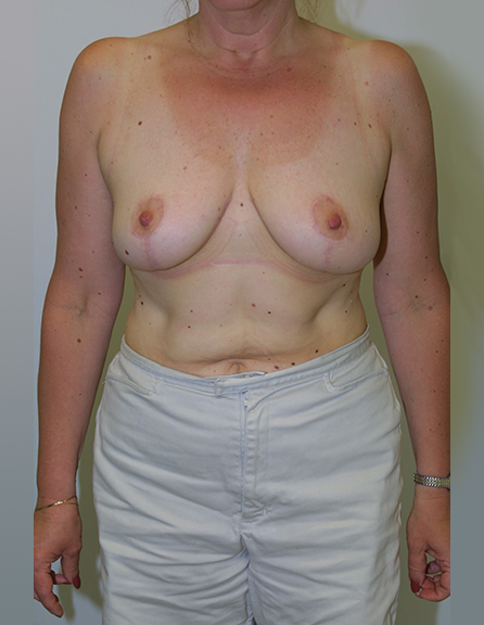 Breast reduction cosmetic in VA