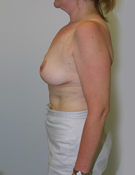 Breast reduction cosmetic in MD