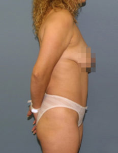 Tummy tuck correction surgeon