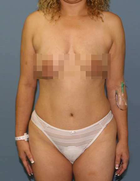 Tummy tuck correction surgery