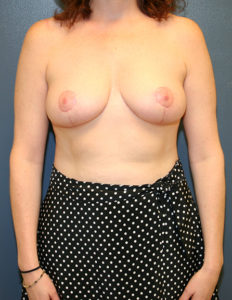 Breast reduction operation in DC
