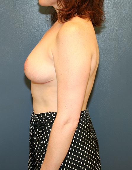 Breast reduction operation in VA