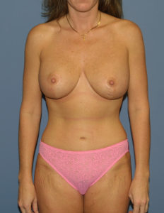 Mom plastic surgery in VA
