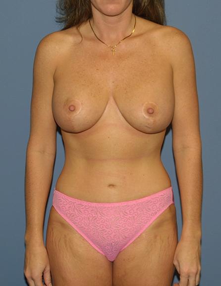 Mom plastic surgery in VA