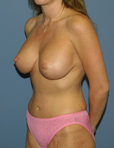 Mom plastic surgery in MD