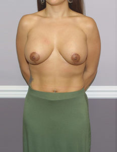 Breast lift and enlargement, Rockville