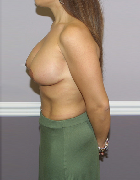 Breast lift and enlargement, McLean