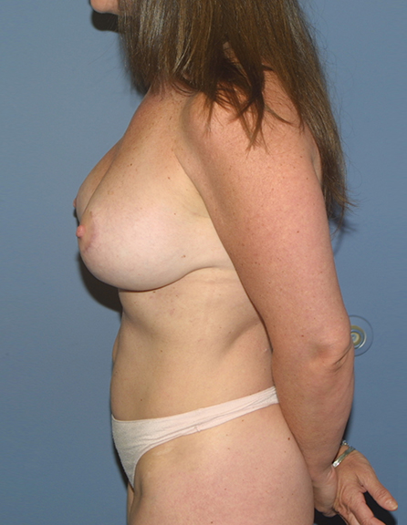 Breast augmentation and lift in Rockville