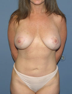 Breast lift and augmentation in Annapolis