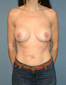 Best breast lift with enhancement in VA