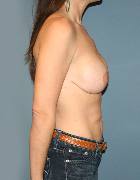 Best breast lift with enhancement in MD