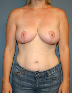 Best breast reduction surgeon in MD