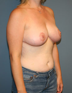 Best breast reduction surgeon in VA