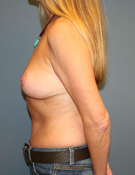 Mastopexy group in MD