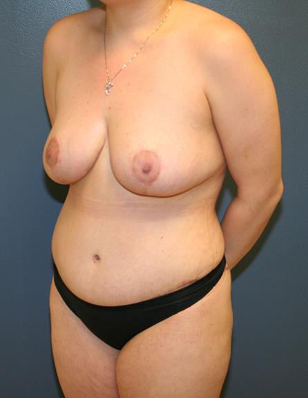 Mommy makeover plastic surgeon VA