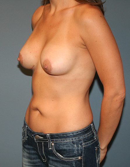 Breast lift with enhancement in MD