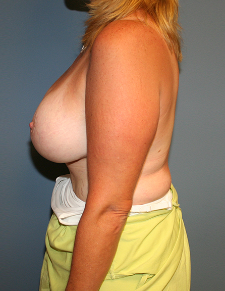 Breast lift with enlargement surgeon in VA