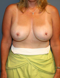 Breast lift with enlargement surgeon in MD