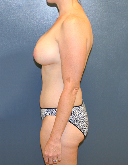 Breast lift with enlargement in MD