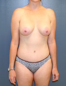 Breast lift with enlargement in DC