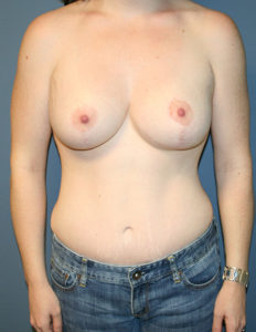 Breast lift with enhancement surgeon in VA