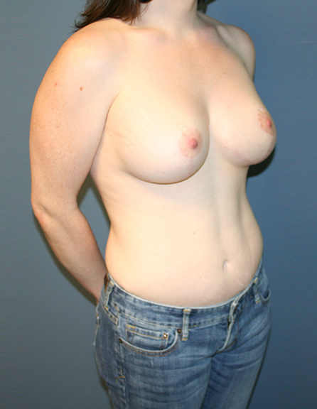 Breast lift with enhancement surgeon in MD
