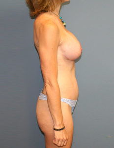 Breast lift with enhancement in VA