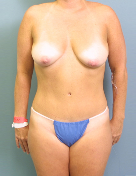 Frontal view, before surgery