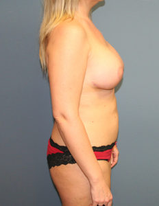 Breast lift with augmentation in MD