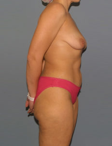 Before mastopexy in VA