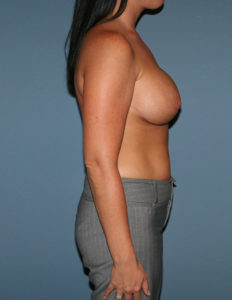 Breast argumentation and lift, DC