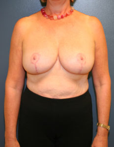 Plastic surgery breast reduction in MD