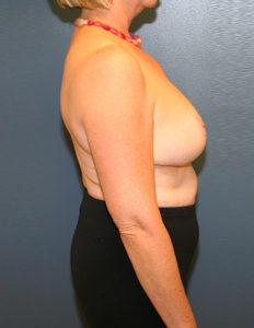 Plastic surgery breast reduction in VA