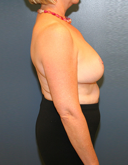 Plastic surgery breast reduction in VA