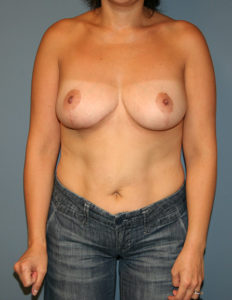 Breast surgery in MD