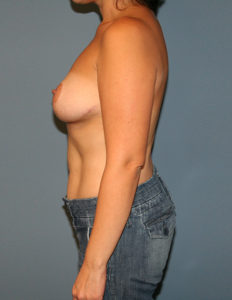 Breast surgery in VA