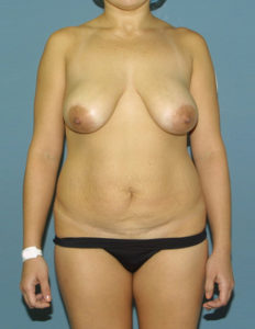 Before mastopexy from the front