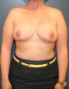 Breast reduction surgeon in Rockville