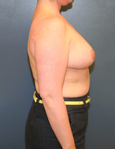 Breast reduction surgeon in McLean