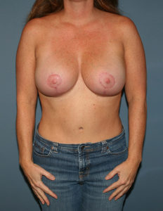 Breast lift with enhancement surgery in VA
