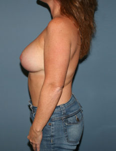 Breast lift with enhancement surgery in MD