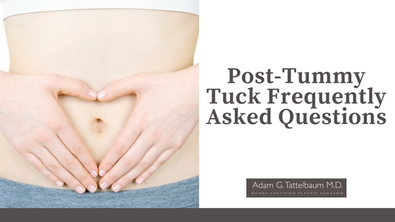 Post-Tummy Tuck Frequently Asked Questions