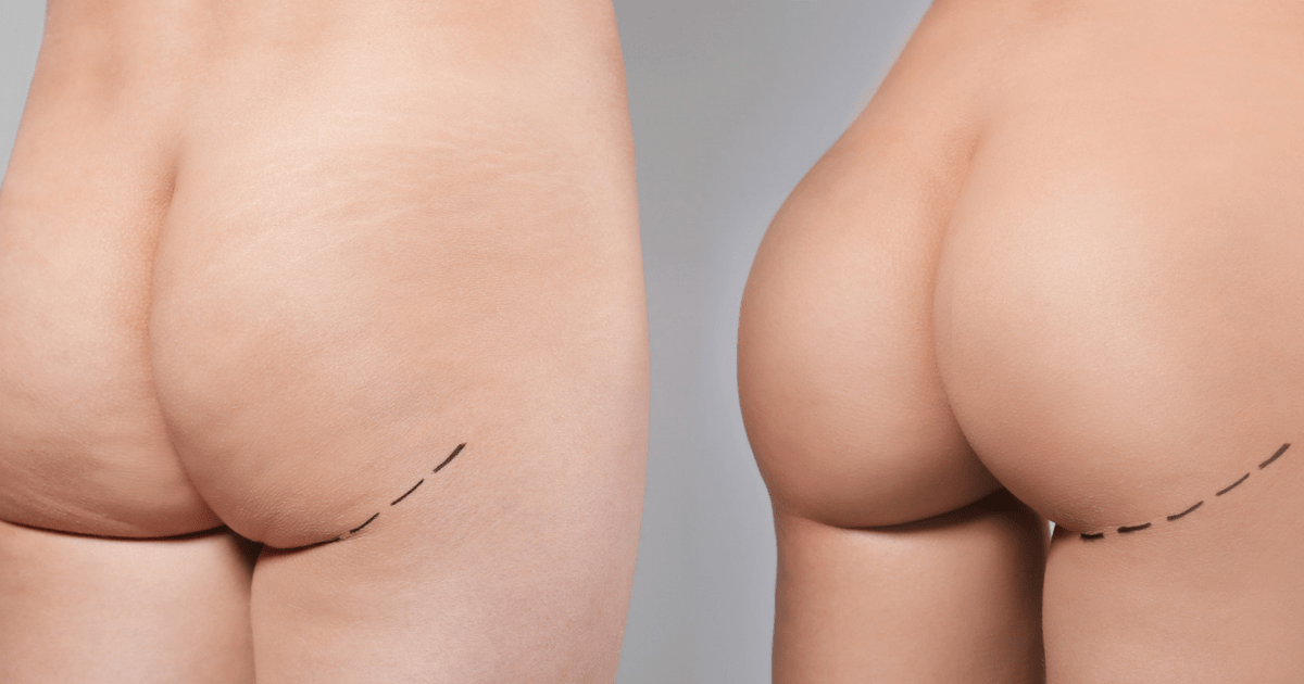 Why Butt Lifts and Augmentations are Rapidly Growing