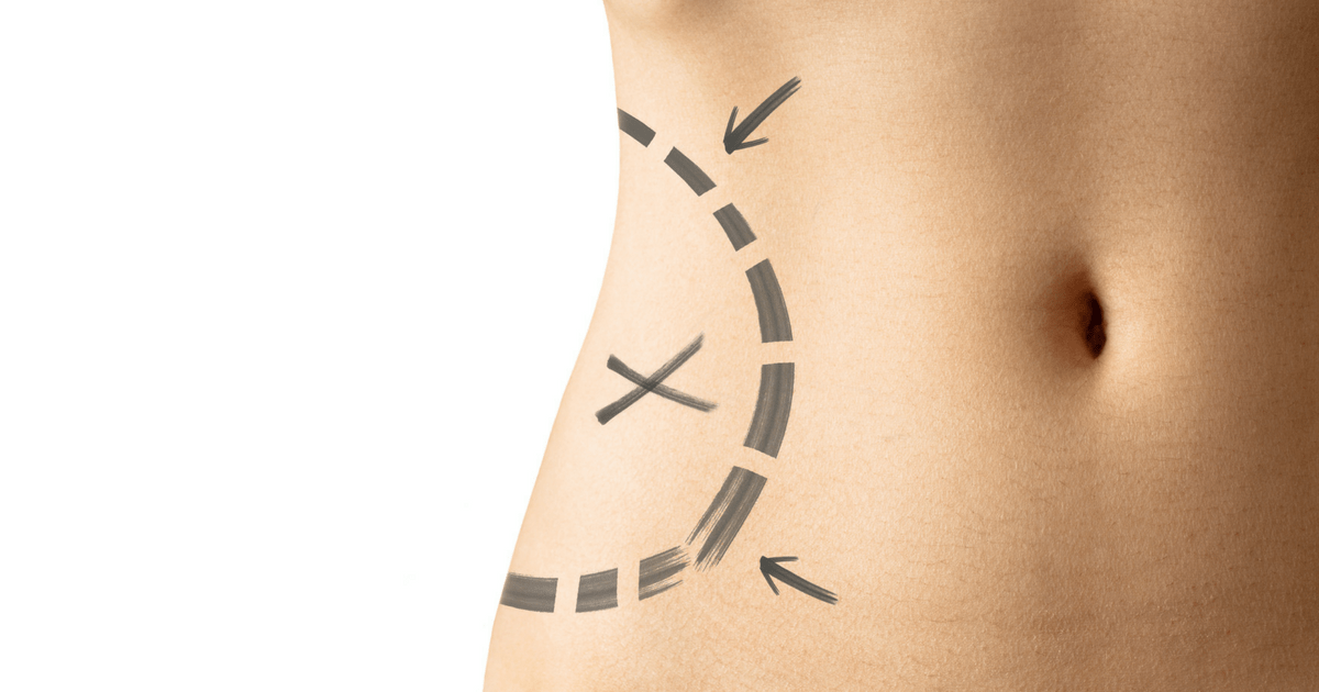 Liposuction is on the Rise_ What You Should Consider Title Image